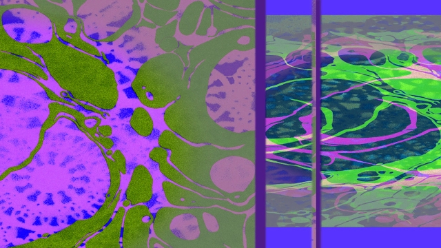 Laced Hue © Catherine Rutgers 2014